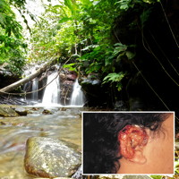 View of forest stream with inset of human ear with chiclero's ulcer